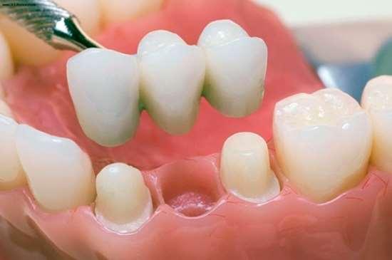 protezirovanie_zubov_02