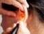Причины развития заболеваний уха