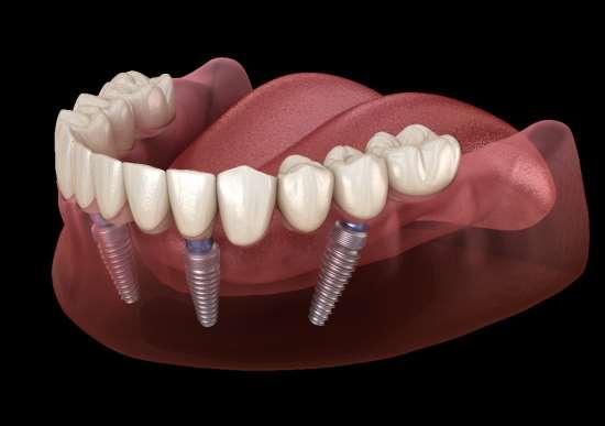 Выгодное протезирование зубов на 4 имплантах