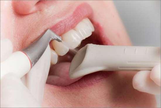 Профессиональные процедуры гигиены полости рта