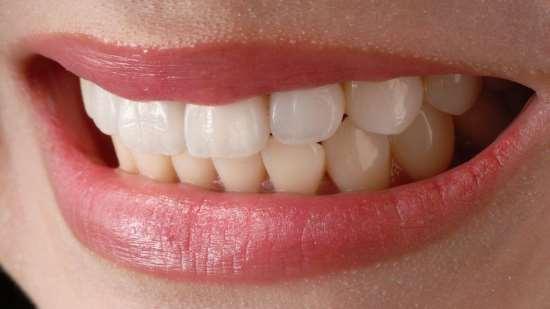 Когда необходима реставрация зубов?