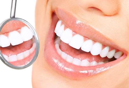 Отбеливание зубов процедурой «ZOOM 4»